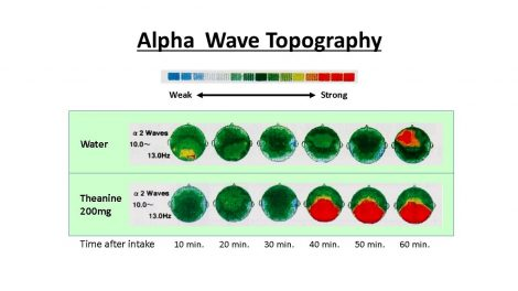 Alpha Wave Topography